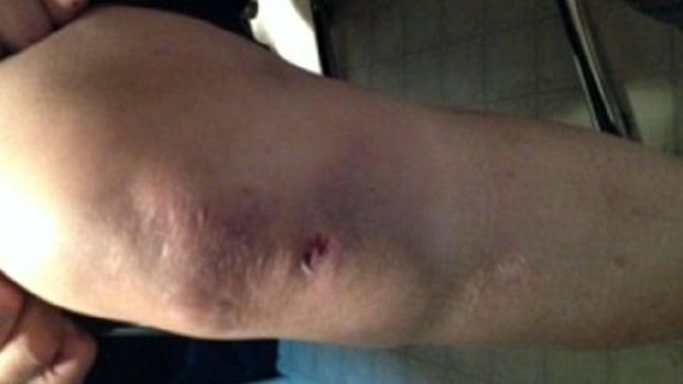 Surrey RCMP alleged assault
