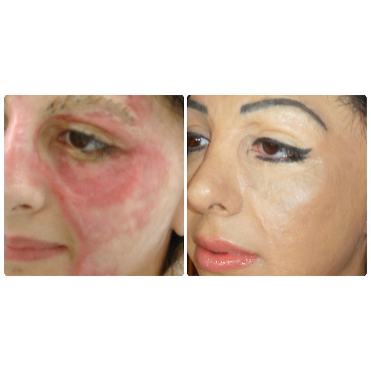 2f240cbf0 Basma Hameed creates booming business tattooing scars | CBC News