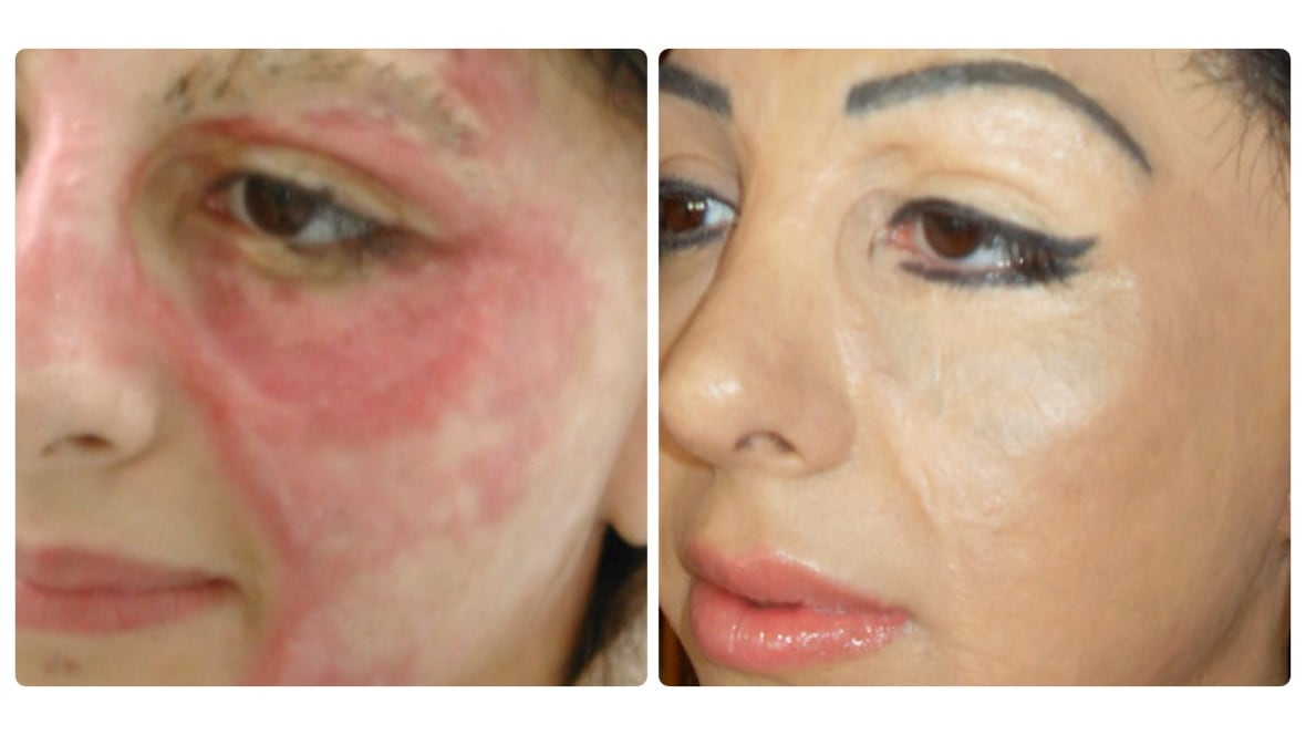 Basma hameed creates booming business tattooing scars for Skin tone tattoo cover up