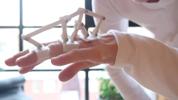 Cornelius Quiring's hand with his 3D-printed assistive glove.