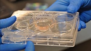 Beating heart cells in Petrie dish
