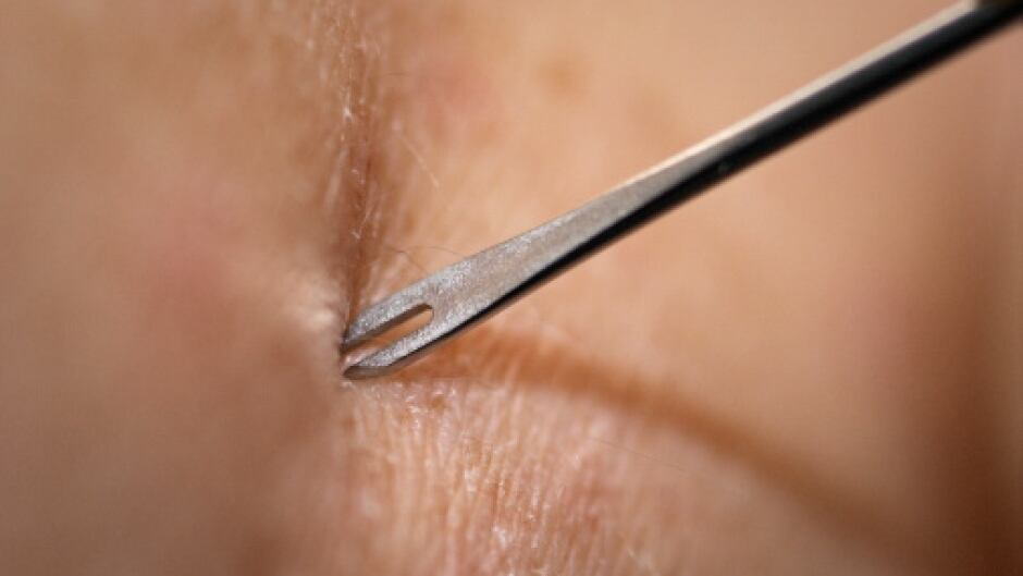 Clinician Demonstrates Use of Bifurcated Needle
