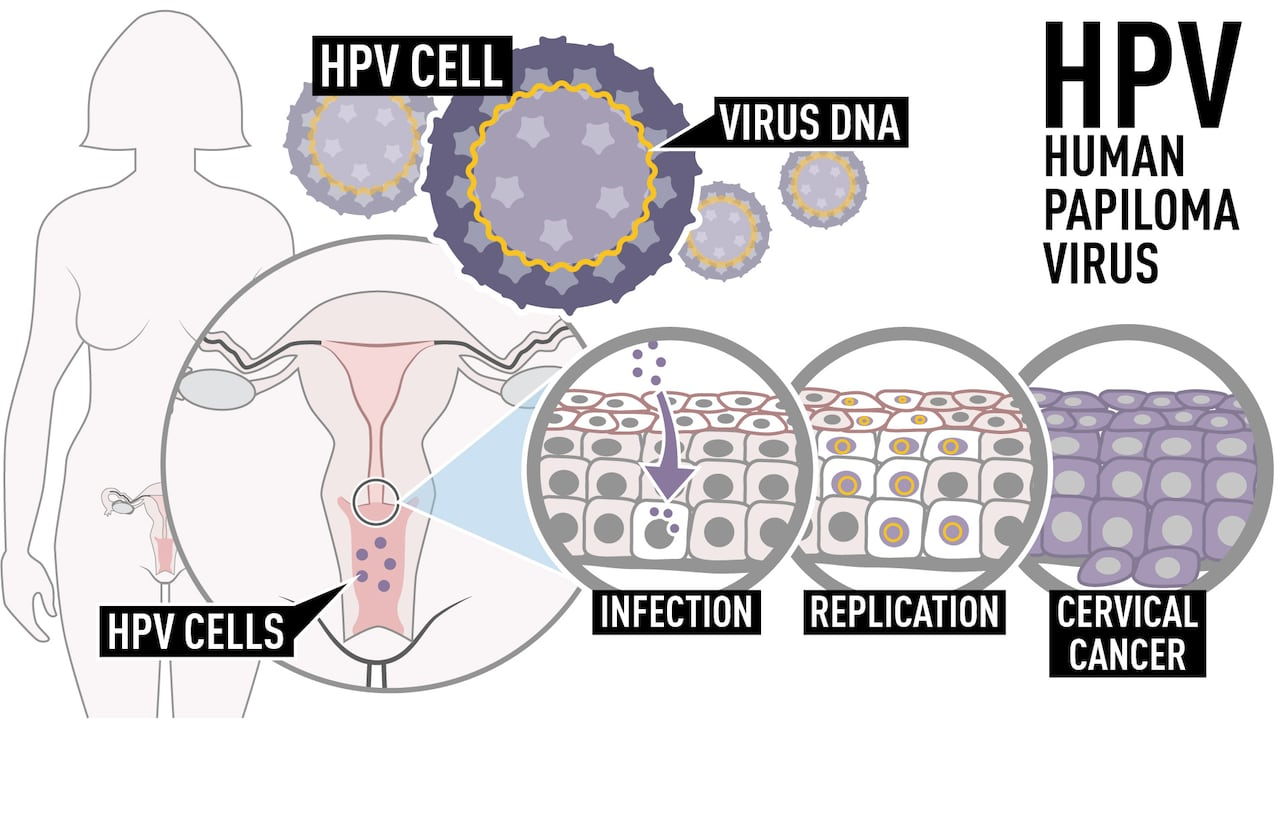 Childhood Hpv Vaccine Lowers Precursor To Cervical Cancer