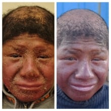 Bolivia Boy with fish-scale skin