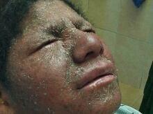 Boliva boy fish skin