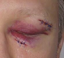 Nurse attacked