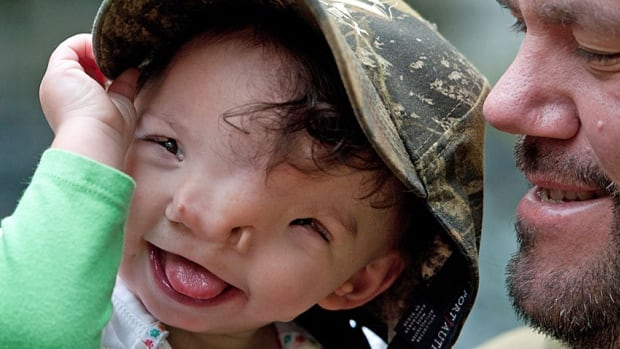 Violet Pietrok, playing with her father Matt, was born two years ago with a Tessier cleft, a rare deformity in which the bones that form the face have not fused properly. Thanks to 3D printing of models of her skull, Violet has begun a series of surgeries to correct the problem.