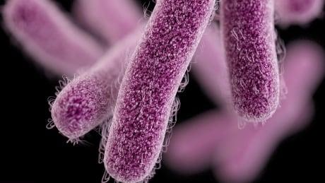 Imported Superbug