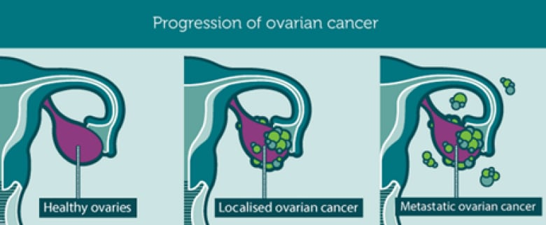 Ottawa Researchers Find Diabetes Drug Has Potential To Prevent Ovarian Cancer Cbc News