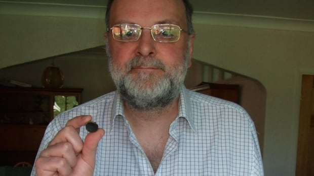 Steve Easton had the suction tip of a toy dart lodged in his nasal cavity for 44 years.