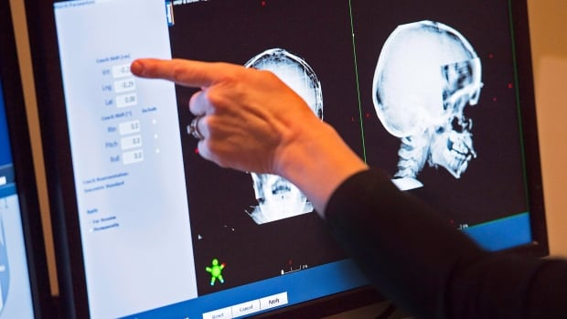 Contrary to conventional wisdom, radiation therapy to the whole brain does not improve survival, and harms memory, speech and thinking skills, doctors have found.