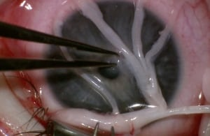 Donor nerve separated into fasciles before being attached to the cornea