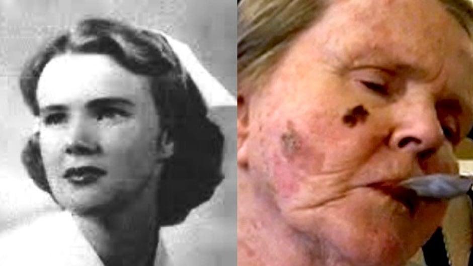 Left: Margot Bentley as a young nurse. Right: Margot Bentley today.