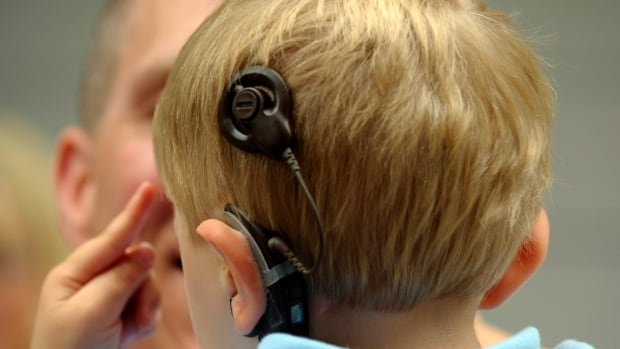 A child wears an auditory brain stem implant to hear.