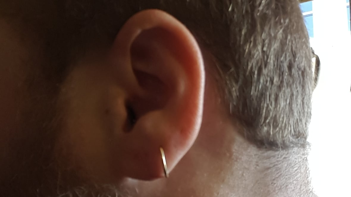 Stretched Earlobe Regret Fuels Surge In Cosmetic Surgery Cbc News