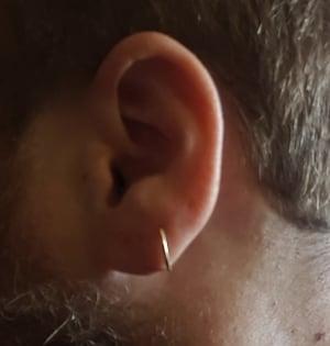 Kurt Barnett ear stretching surgery