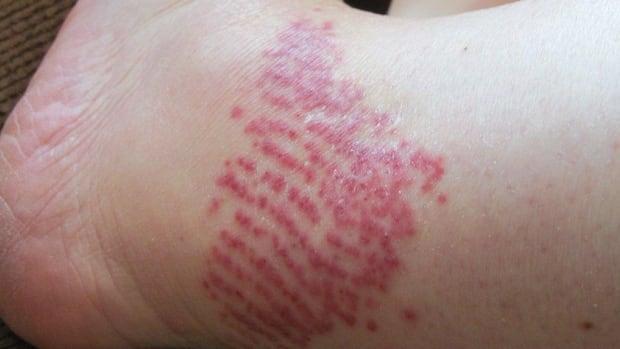 Black Fly Bite On Dog Treatment