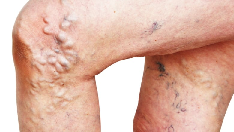 3d07dd0957 Apart from being unsightly, varicose veins can cause itching, pain and  swelling. (nixki/Shutterstock)