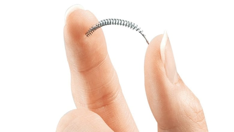 Feeling 'sliced up inside': Birth control implant Essure led to pain