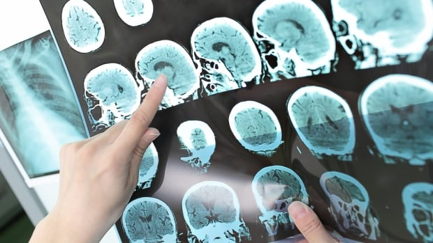 The quality of a patient's recovery from a stroke relies a lot on the speed of the initial treatment as well as followup rehabilitation, according to the Heart and Stroke Foundation of Manitoba.