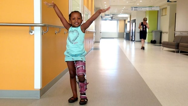 Waina Dorcelus has undergone 14 surgeries since her birth.