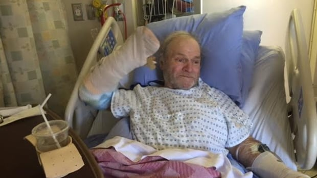 Robin Elgie, 66, was airlifted to the University of Alberta Hospital in Edmonton after the attack and has undergone seven surgeries in the past three weeks.