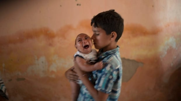 Elison nurses his 2-month-old brother Jose Wesley at their house in Poco Fundo, Pernambuco state, Brazil., where scientists suspect a link between microcephaly and Zika virus infection.