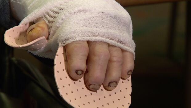 Robin Elgie hands
