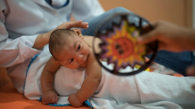 Three-month-old Daniel, who was born with microcephaly, undergoes therapy at the Altino Ventura foundation in Recife, Brazil, on Thursday. Brazilian officials believe there's a sharp increase in cases of microcephaly, and strongly suspect the Zika virus. Canadian and U.S. scientists are now working on a vaccine.