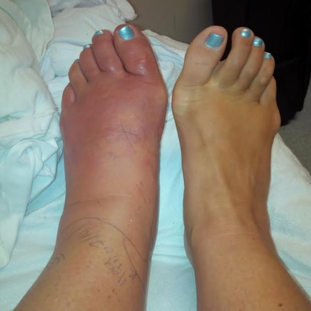 foot infection 2