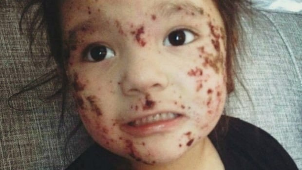 Health Canada says Kashechewan is not facing a health emergency but critics say the rash outbreak is indicative of larger public health emergency in Ontario's northern First Nations.
