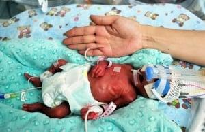 CHINA premature infant
