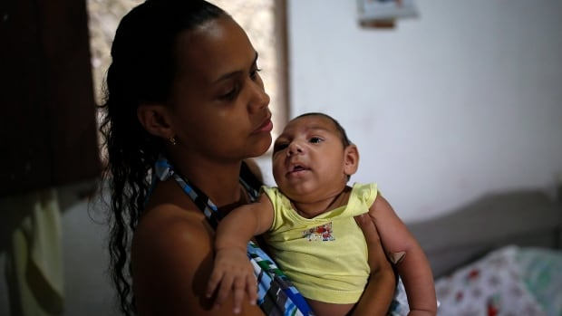 Janine Santos holds her 3-month-old son Shayde Henrique who was born with microcephaly. Zika is now proven as a cause of microcephaly or unusually small heads, the CDC says.