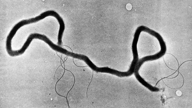 Syphilis rates in province highest since 1948, Alberta Health warns