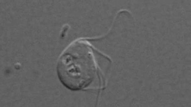 The single-celled organism Monocercomonoides is the first eukaryote ever discovered that has no trace of mitochondria.