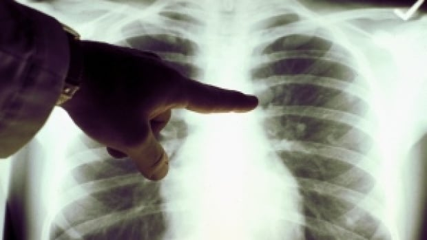 Tuberculosis typically settles in the lungs and is treated with antibiotics.