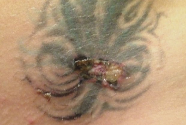 Vancouver woman sues laser clinic over 39 negligence for Waxing over tattoo