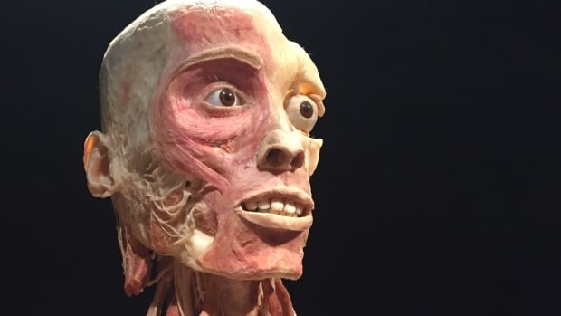 One of the preserved humans in Body Worlds Vital at Telus Spark Science Centre. CBC was not allowed to publish any photograph of the two specimens having intercourse on display in the Calgary exhibit.