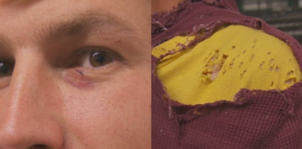 Coombs World Parrot Refuge Matt Spate Eye Injury Ripped Shoulder