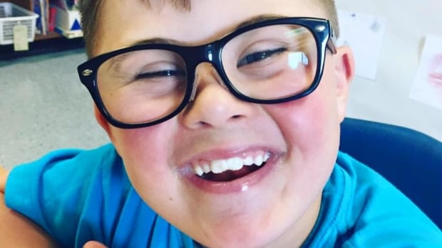 Sawyer, who has Down syndrome, was the only child in a class of 23 not invited to a classmate's birthday party.