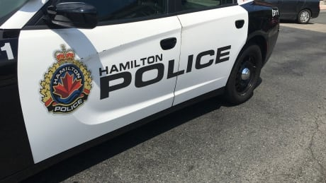 Hamilton police officer suffers minor injuries after hit by vehicle on highway