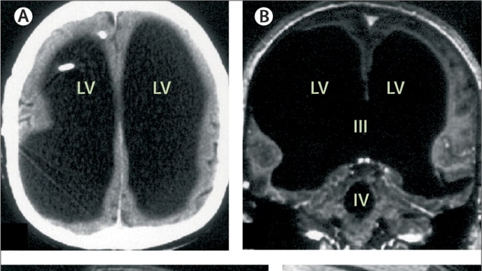 These scans of a French man's brain were published in The Lancet in 2007. Since then, this case has puzzled researchers, including cognitive psychologist Axel Cleeremans.
