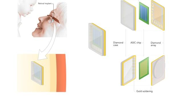 A retinal implant, enclosed in a diamond 'box,' stimulates the retina.