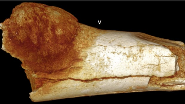 A fossilized foot bone found in South Africa is the oldest evidence yet that ancient humans suffered from cancer. The bone dates back about 1.7 million years.