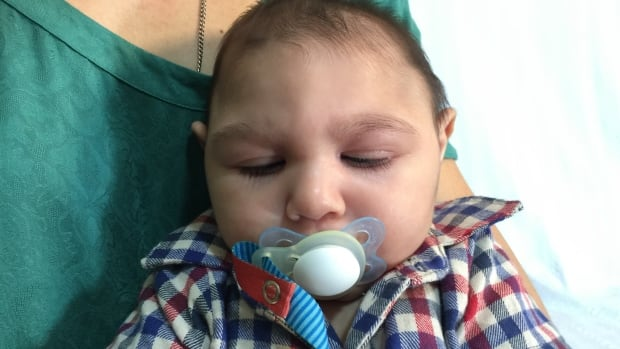 Leandro Mendonca, who was born in Rio de Janeiro five months ago, has microcephaly, but doesn't appear to show the most serious complications of the birth defect linked to the Zika virus.