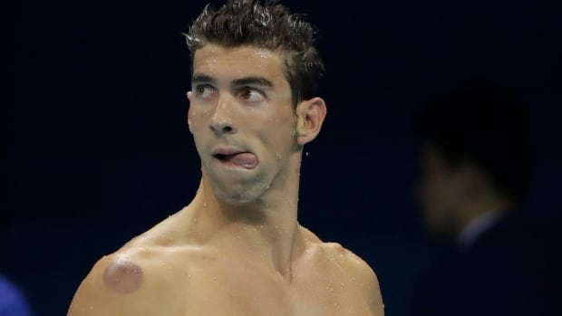 That purplish circle seen on the shoulder of U.S. swimmer Michael Phelps was caused by cupping, a traditional Chinese medicine technique some athletes use to try to relieve pain.