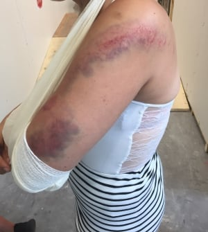 Chelsea Mobishwash injuries