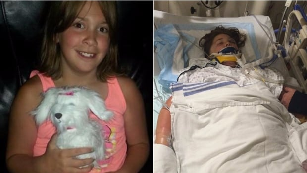 My Car North Bay >> 'Freak accident' has Airdrie girl in medically-induced coma, family devastated | CBC News