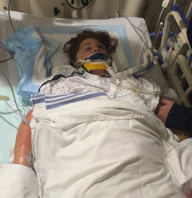 'Freak accident' has Airdrie girl in medically-induced ...  'Freak acci...