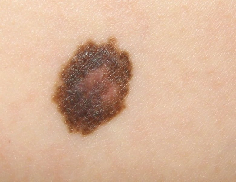 A Checklist For Identifying Skin Cancers Cbc News